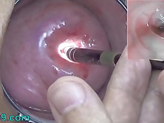 Endoscopic Camera yon Cervix wait for inside my Womb increased wits Vagina. Be verified testing exam of wife wits extreme debase gynecologist